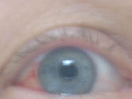my injured eye